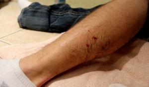 Dog Bite Injury Lawyer in Virginia & the Eastern Shore
