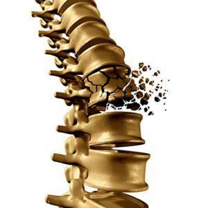 Spinal Injury Lawyer